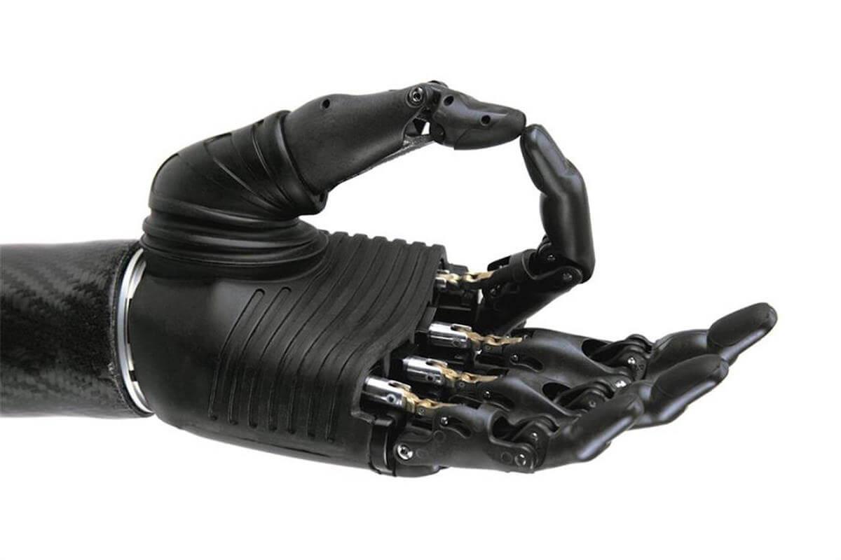 mano bionica